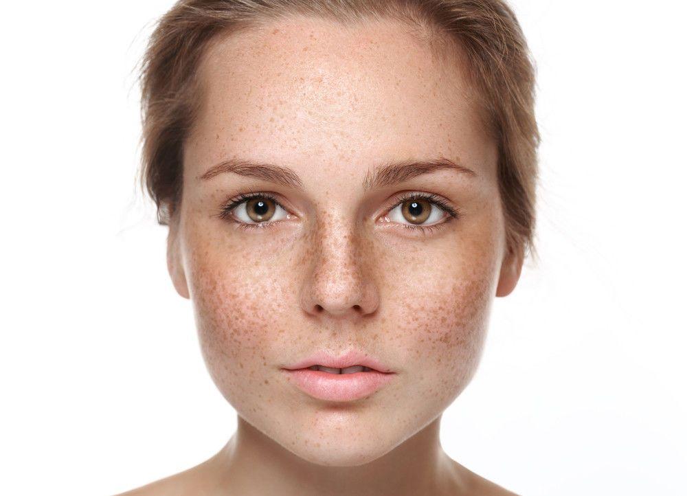 Hyperpigmentation & teint terne