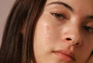 clear_start_huidverzorging_tiener_meisje