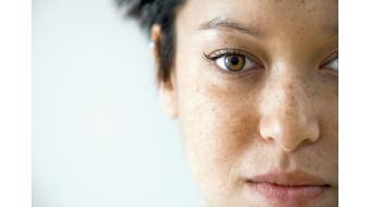 Alles wat je moet weten over pigmentschade