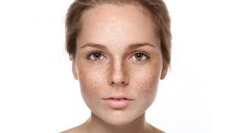 Causes d'hyperpigmentation