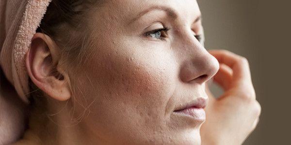 Hoe ontstaan onzuiverheden (acne) bij volwassenen?